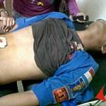 Ferry, Korban yang Ditembak Polisi